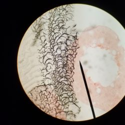 Image from microscope slide